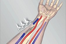 New predictive method can greatly reduce complications in hemodialysis